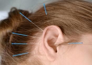 Medicine Hat acupuncture Acupuncture Essence Ltd