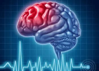 Edmonton neurologist Dr. KENNETH G. MAKUs