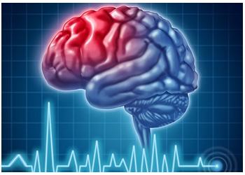 Burnaby neurologist Dr. Marketa Van Den Elzen, MD