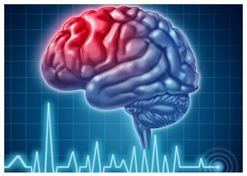 Richmond neurologist Dr. Schepmyer, MD