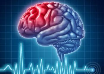 London neurologist Dr. Warren Blume, MD, FRCPC